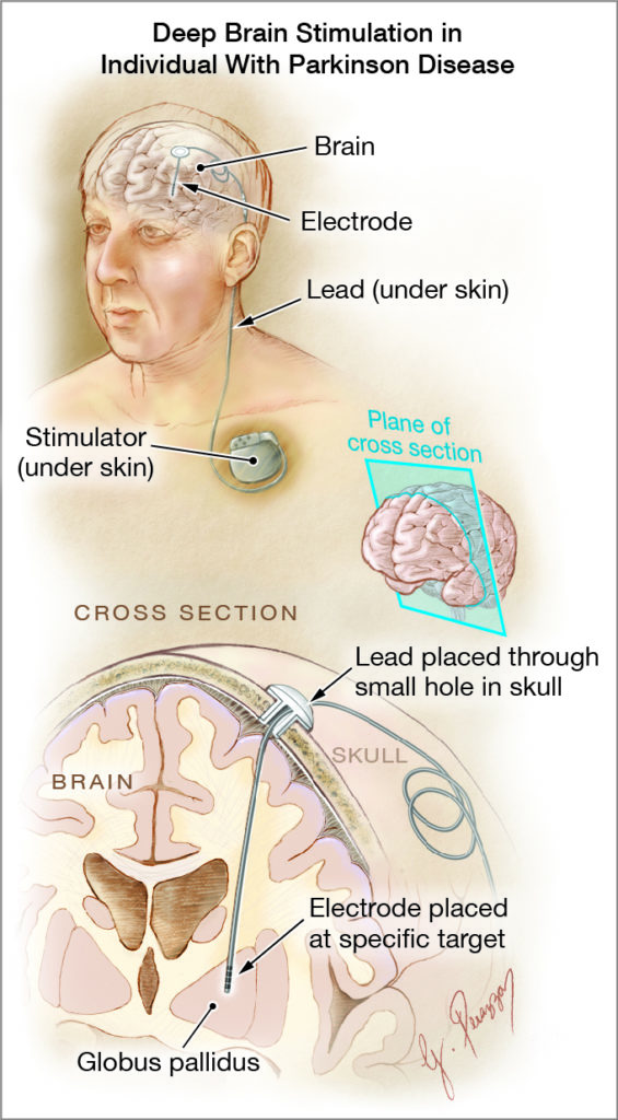 HIGH REZ — ONE TIME USE ONLY for 22StatBrain— Graphic of deep brain stimulation procedure. (Courtesy The Journal of the American Medical Association)