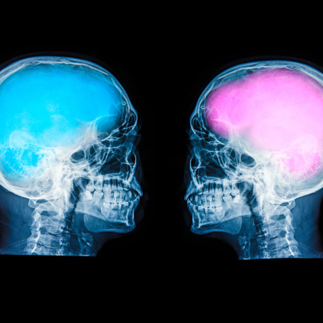 theres no such thing as a male or female brain study finds
