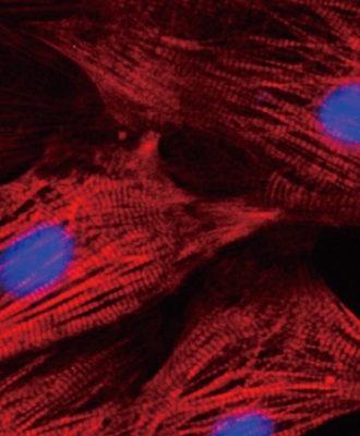 Heart cells
