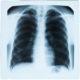 Chest X-ray pneumonia