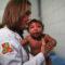 Microcephaly Brazil Zika