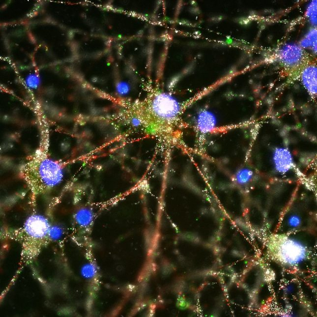 Genetic Discovery Provides New Insight >> Schizophrenia Gene Discovery Offers Hope For Effective Drug