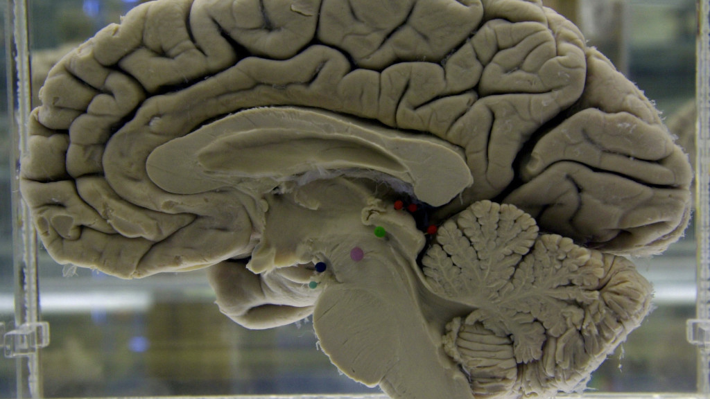 How a common parasite finds its way to the brain - STAT