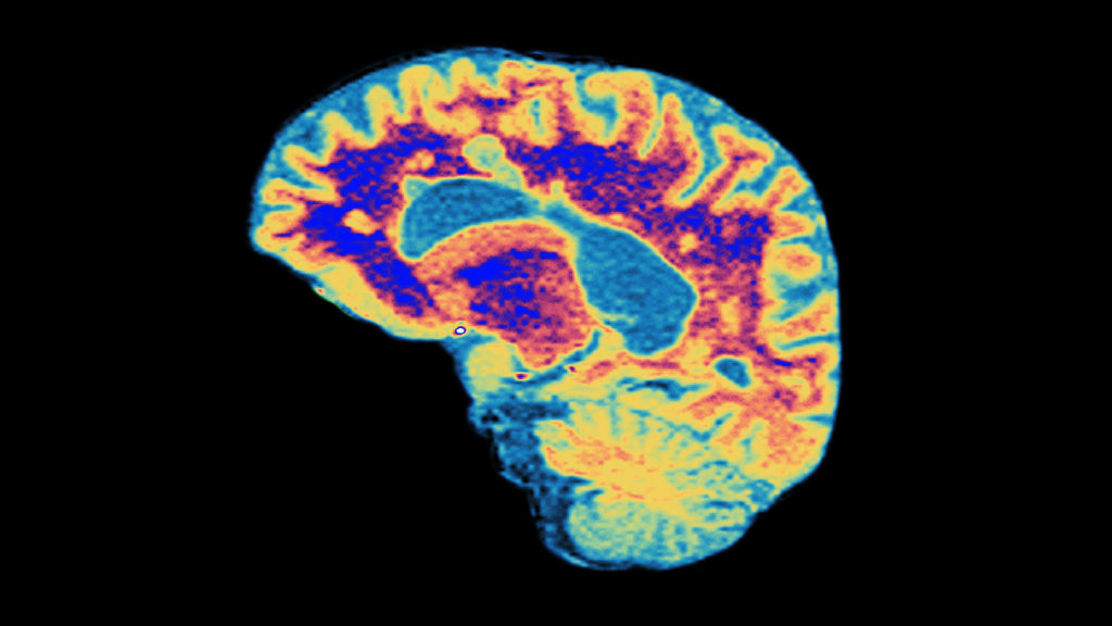 New drug for severe form of MS generates glimmer of hope