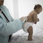 Microcephaly Brazil