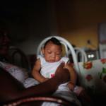 Microcephaly Zika Brazil