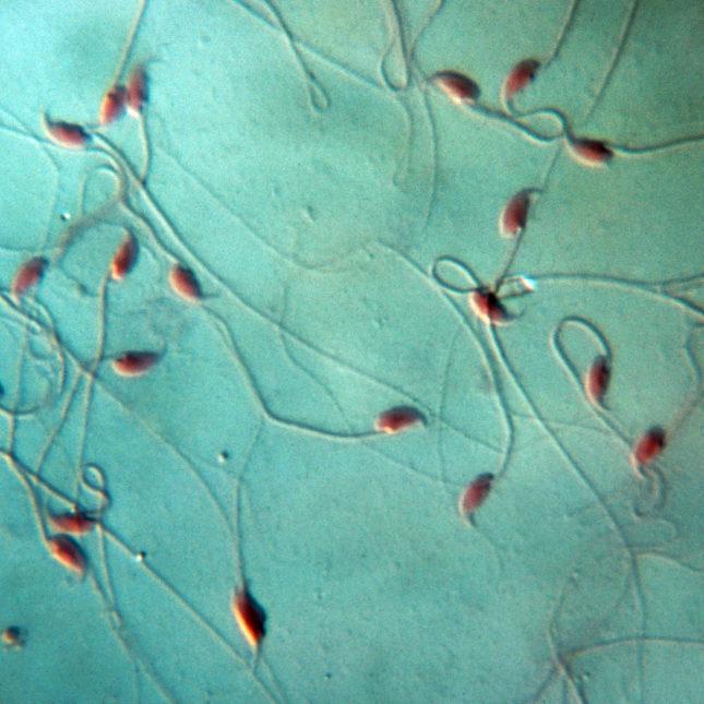 Mouse Spermatozoa