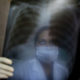 India Tuberculosis Villages