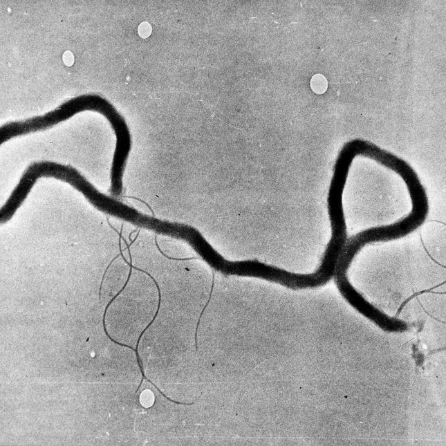 Chlamydia Gay Infecting Man Rare Strain