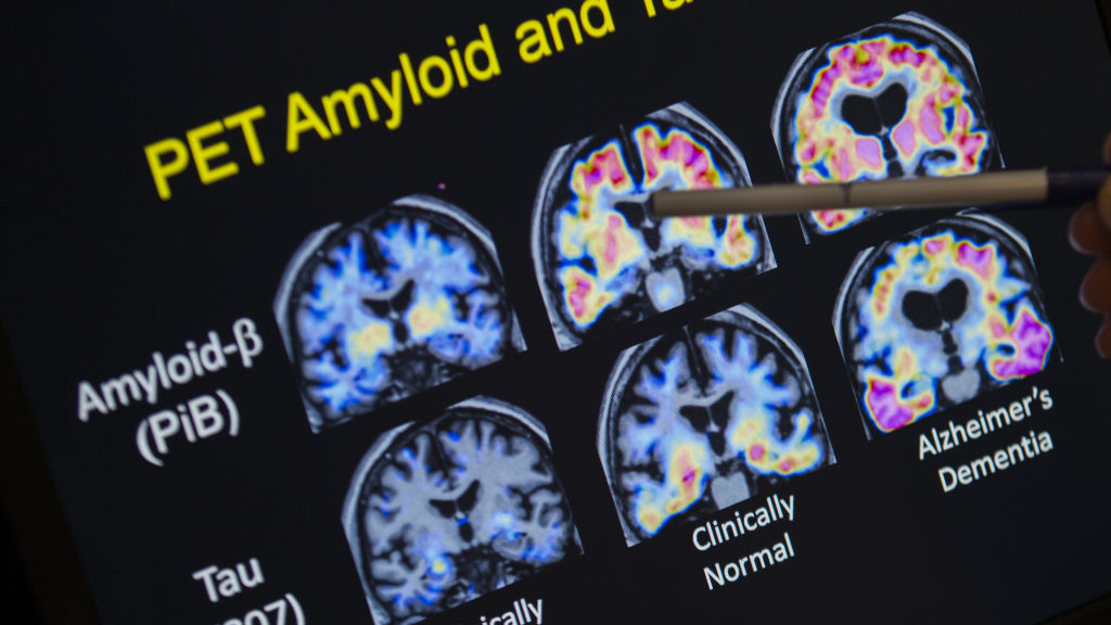 Brain scans may change care for some people with memory loss - STAT