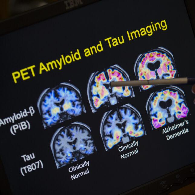Alzheimer's Tau imaging