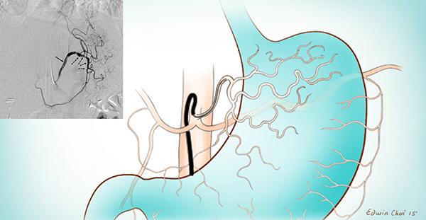 Bariatric Embolism Handout