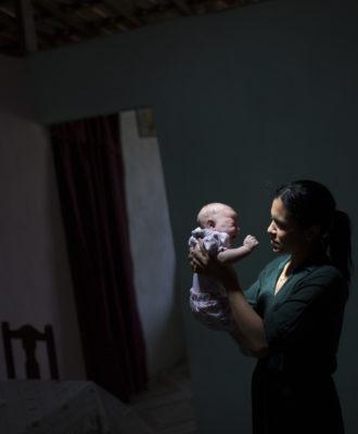Brazil Zika Virus -- Microcephaly