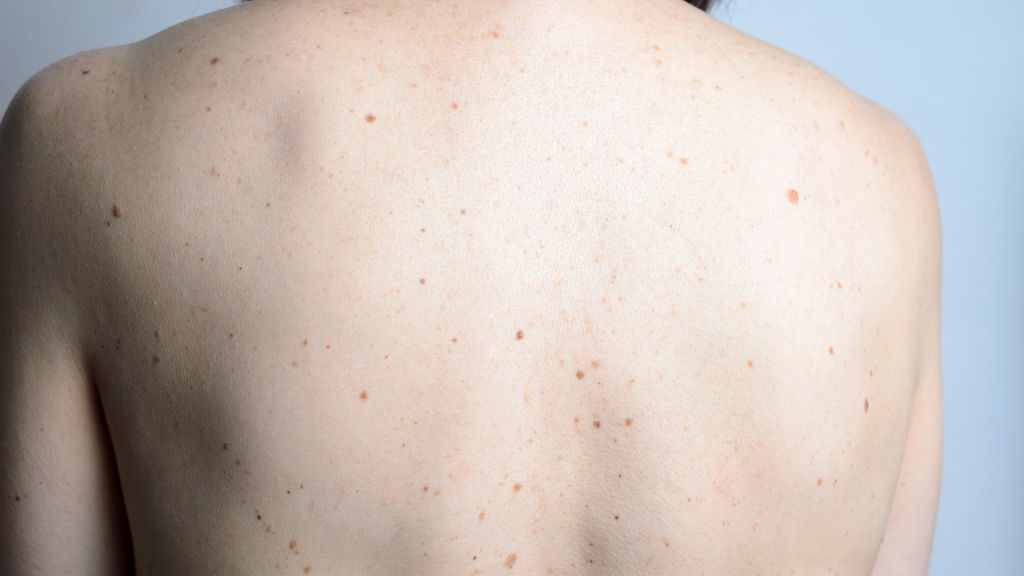 Do more moles mean more problems? Not so, says new study