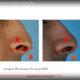Plastic Surgery YouTube training