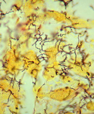 Syphilis spirochetes