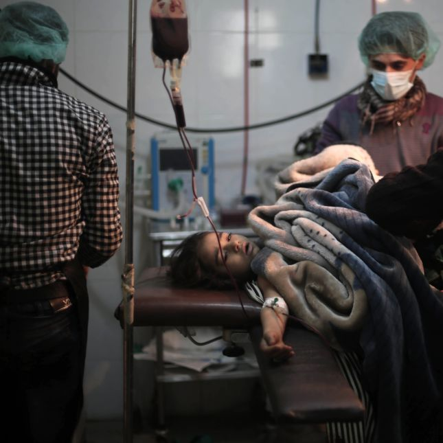 Surgeons prepare a young girl for surgery following an air strike near Douma, Syria.