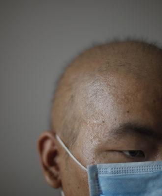 Cancer treatment China