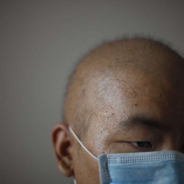 Cancer treatment China