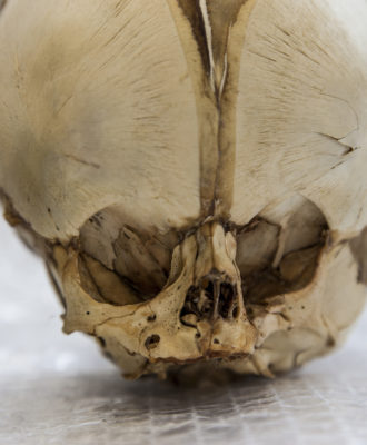 Close-up of full-term foetal skull