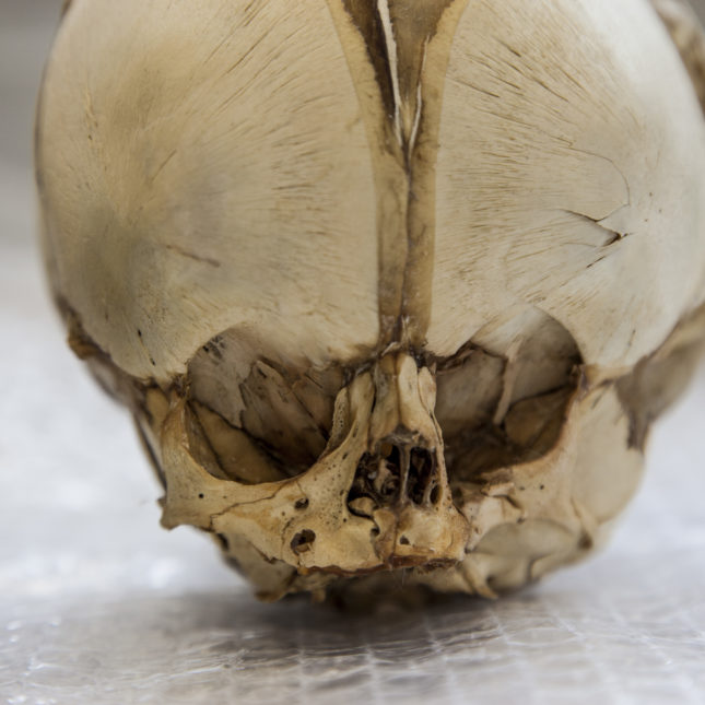 Close-up of full-term foetal skull