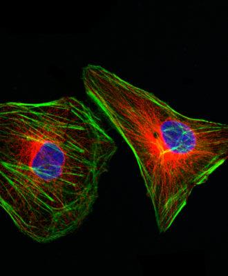 Cytoskeletal Proteins