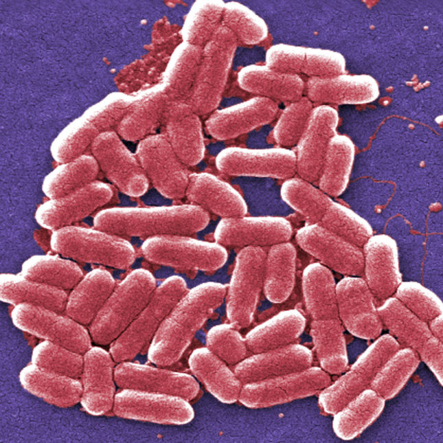 Superbug Q And A