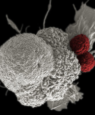 CAR-T and cancer cell
