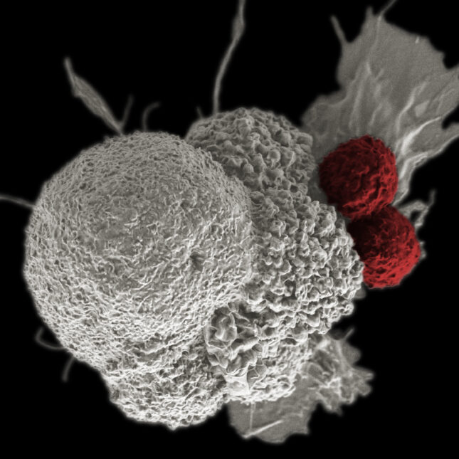 ASH19 CAR-T and cancer cell