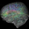 This image from the Allen Human Brain Atlas shows the expression of select genes across the human brain.