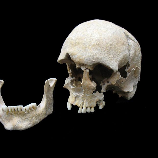 Plague skull