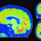 Brain Gene Expression