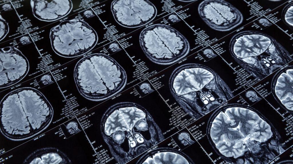 google and human brain essay