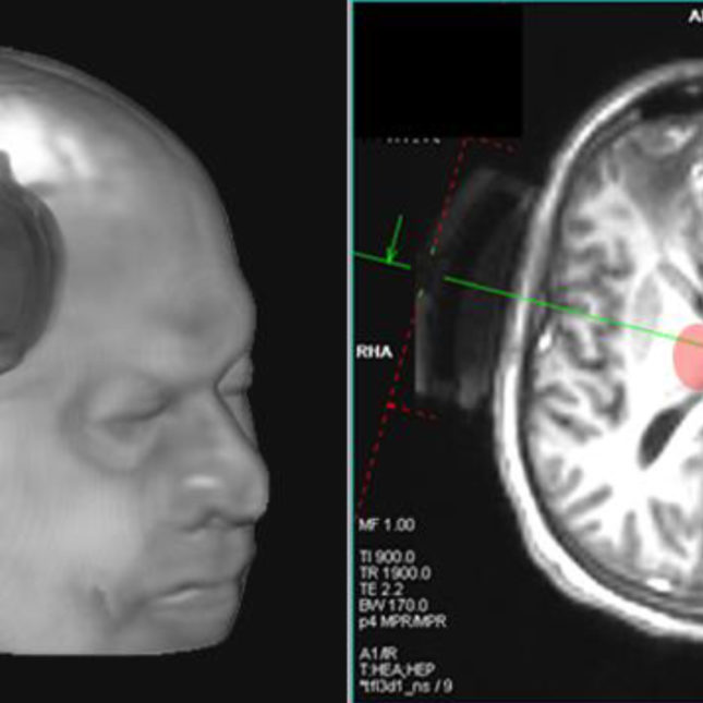Drug May Jump Start Communication In >> New Device May Help Jump Start Brains Of Coma Patients