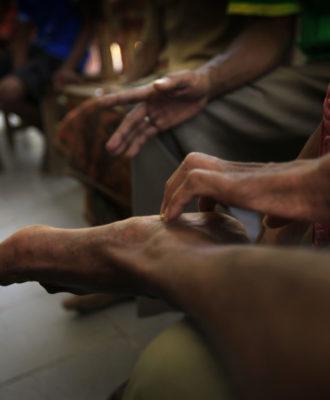 East Timor Leprosy