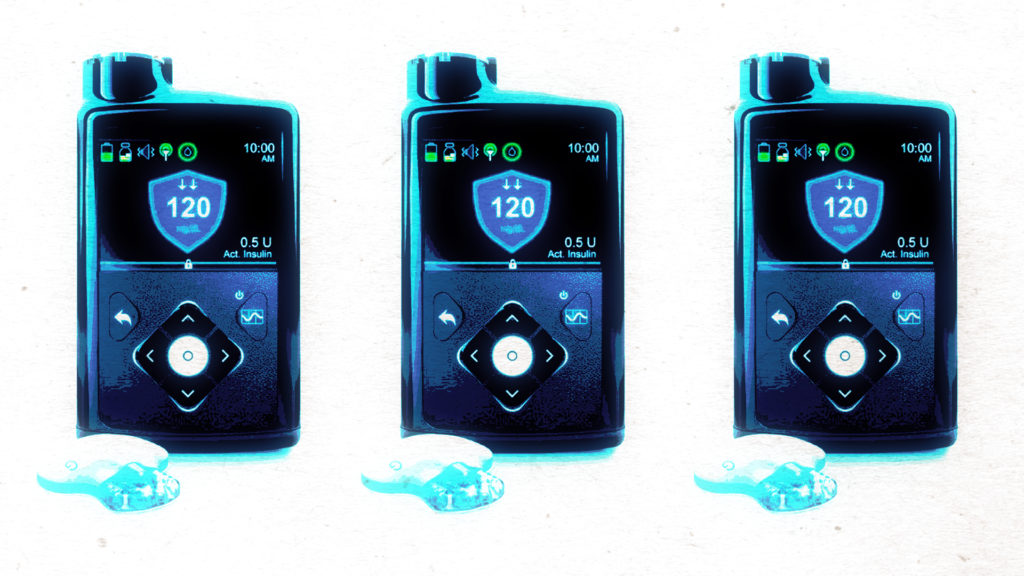 The risky bet behind the first 'artificial pancreas' for diabetes