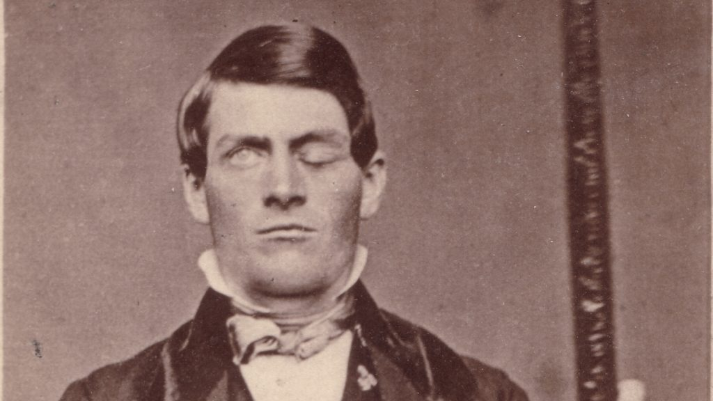 The story of Phineas Gage Essay