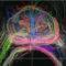 Prostate MRI