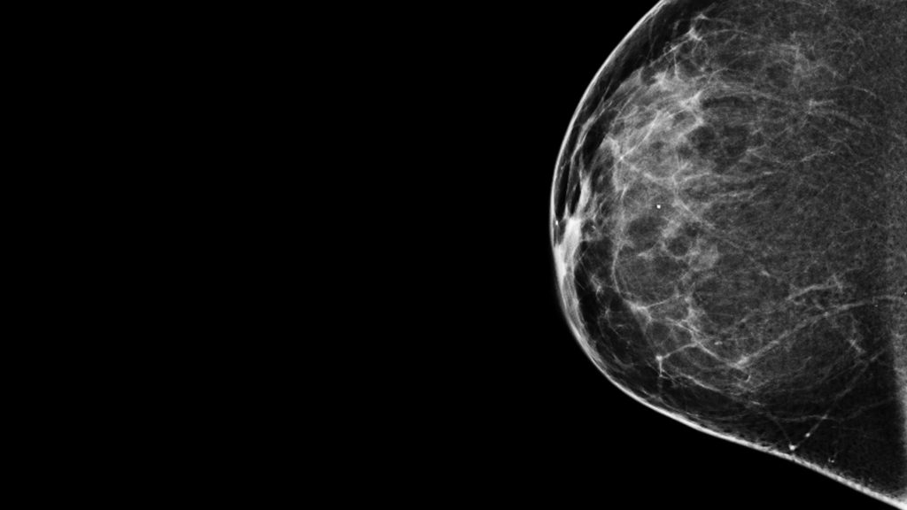 mammogram one more time 50