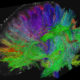 Female concussion brain scan