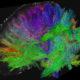 Female concussion brain scan