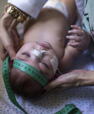 Brazil microcephaly Zika