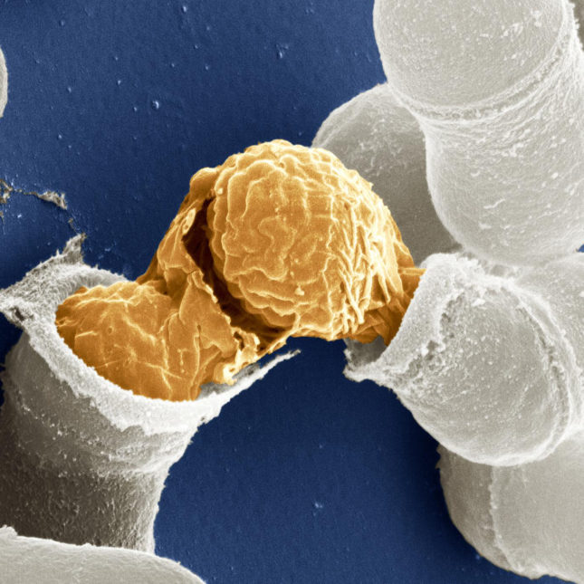 Yeast Cell