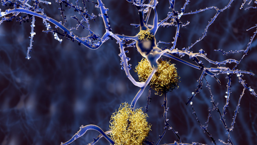 now Eli Lilly releases detailed results on Alzheimer's drug, as data divide researchers - STAT