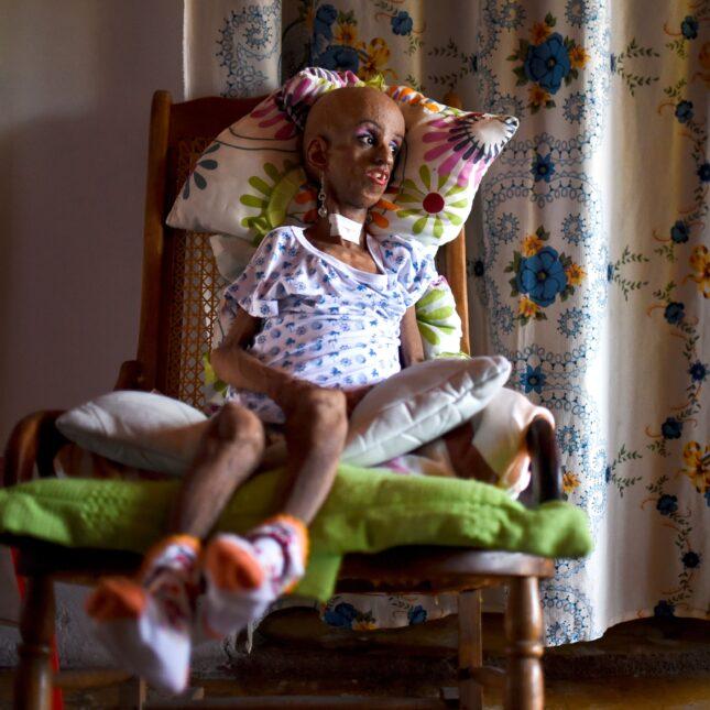 Progeria - Magali Gonzalez Sierra