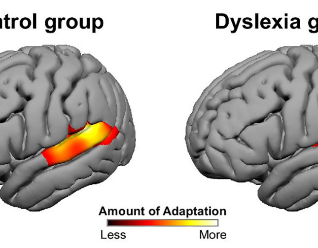 Dyslexia adaptation