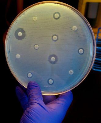 carbapenem resistant Enterobacteriaceae
