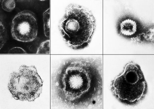 Flawed herpes testing leads to false positives, needless
