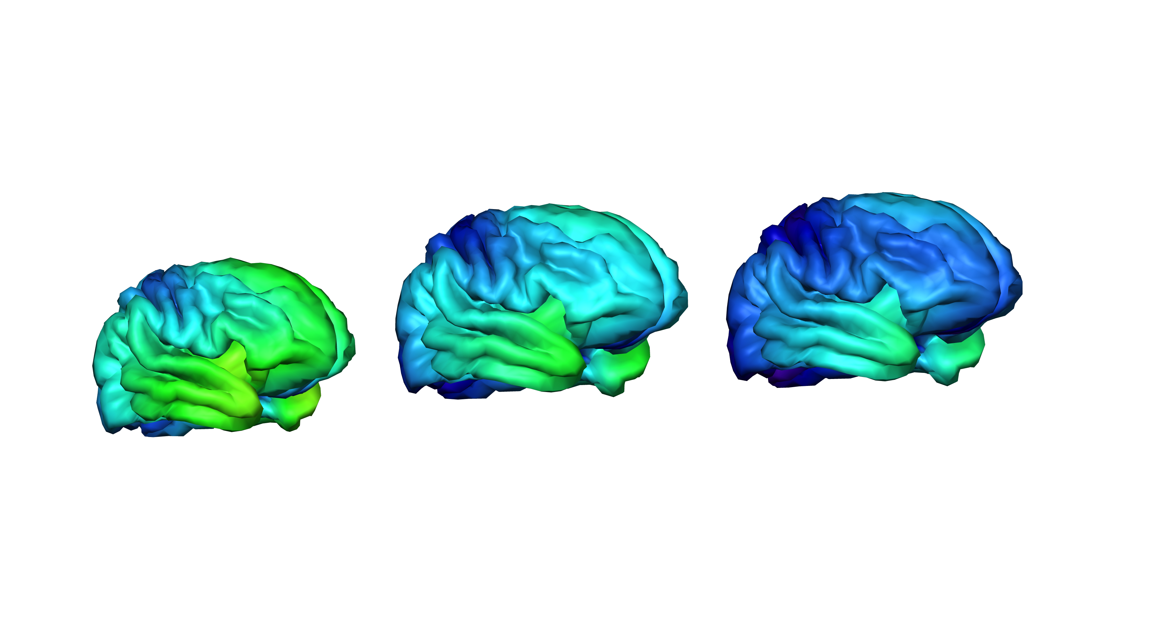 For Teenage Brains Importance Of >> This Study Could Unlock The Mysteries Of Teen Brain Development
