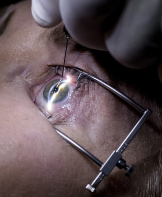 eye surgery blurry vision